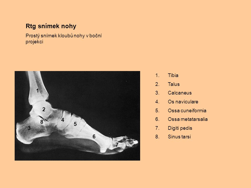 Rtg snímek nohy Prostý snímek kloubů nohy v boční projekci. Tibia. Talus. Calcaneus. Os naviculare.