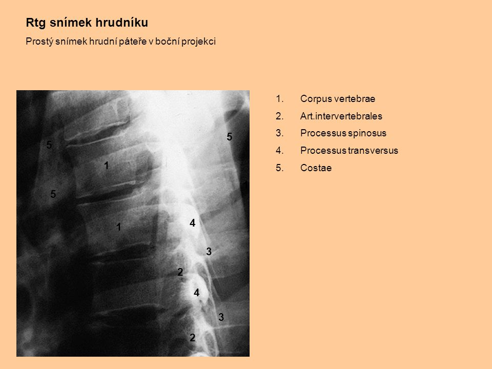 Rtg snímek hrudníku Prostý snímek hrudní páteře v boční projekci. Corpus vertebrae. Art.intervertebrales.
