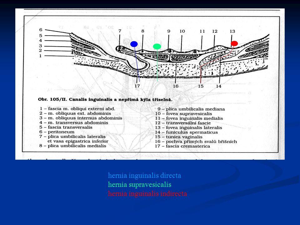 hernia inguinalis directa