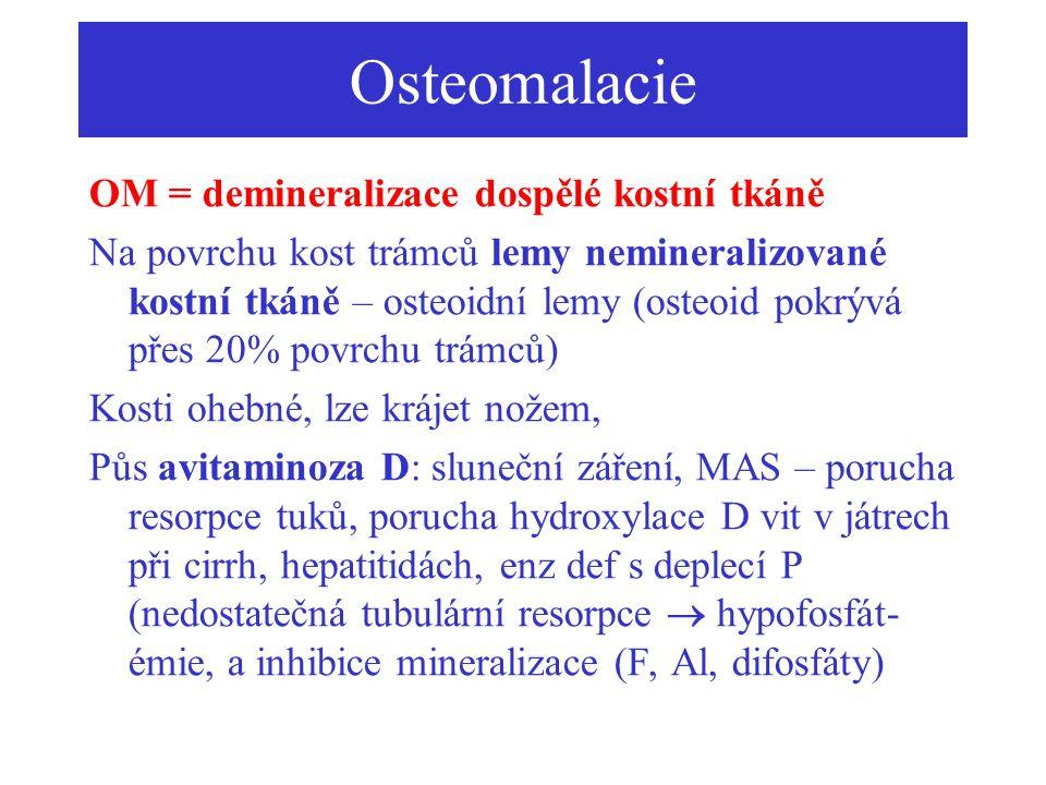 Osteomalacie OM = demineralizace dospělé kostní tkáně