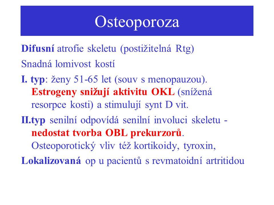 Osteoporoza Difusní atrofie skeletu (postižitelná Rtg)