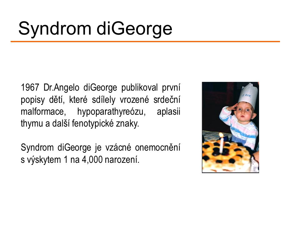 Syndrom diGeorge