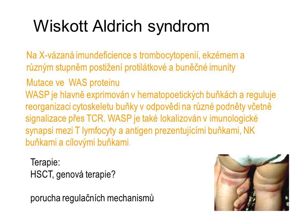 Wiskott Aldrich syndrom