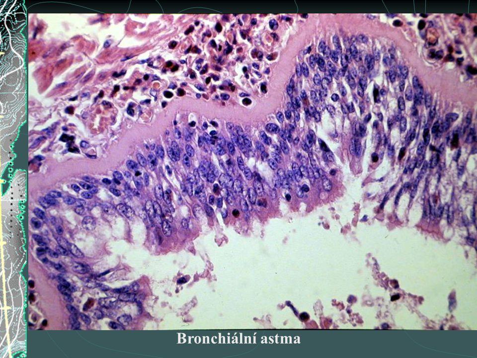 Bronchiální astma