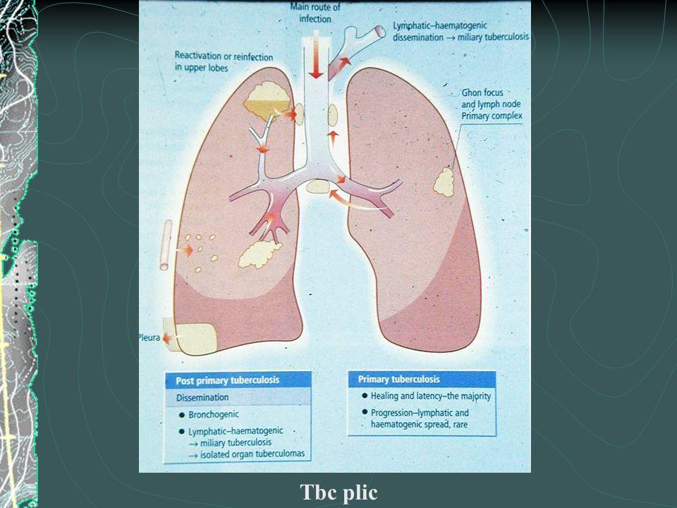 Tbc plic