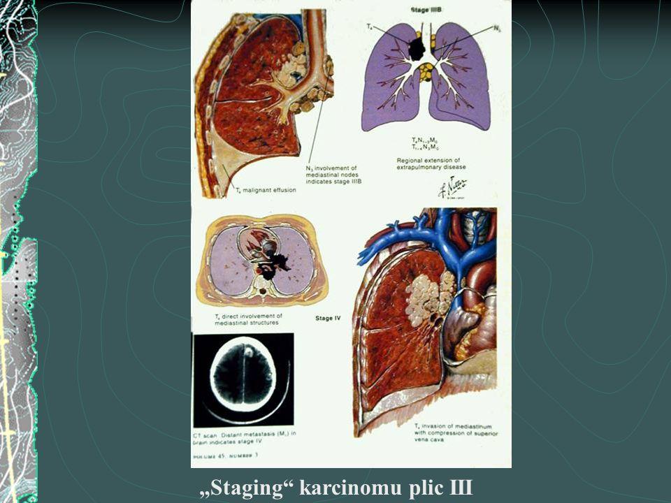 """""""Staging karcinomu plic III"""