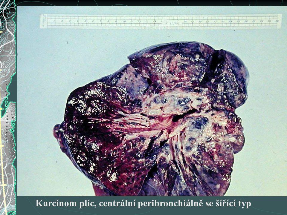 Karcinom plic, centrální peribronchiálně se šířící typ