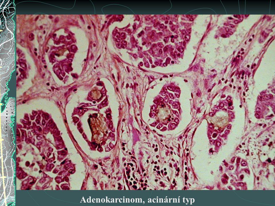 Adenokarcinom, acinární typ
