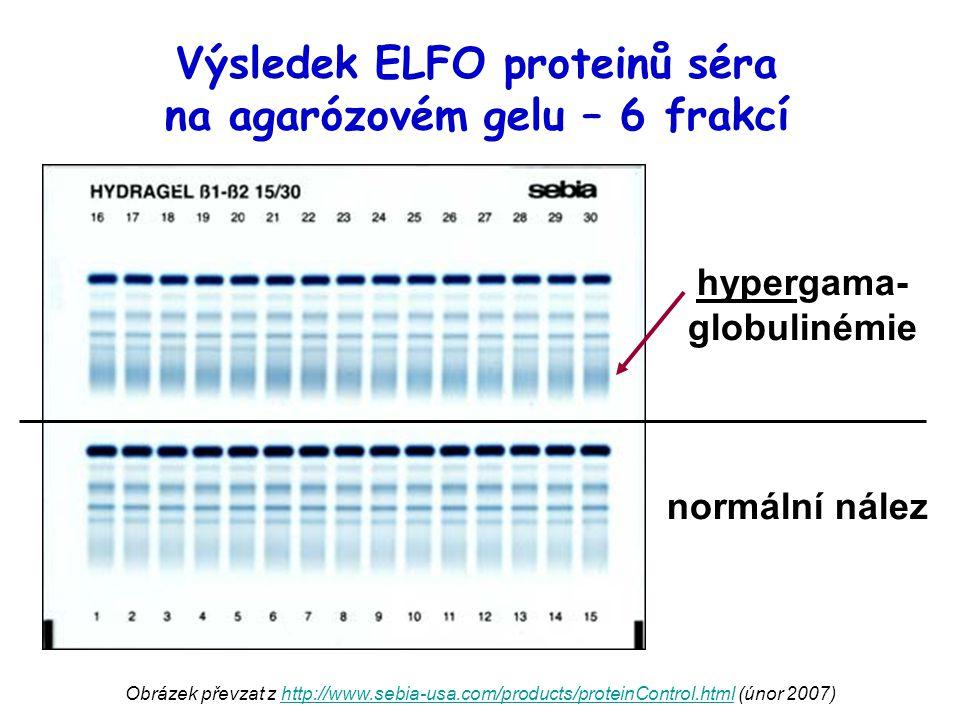 Výsledek ELFO proteinů séra na agarózovém gelu – 6 frakcí