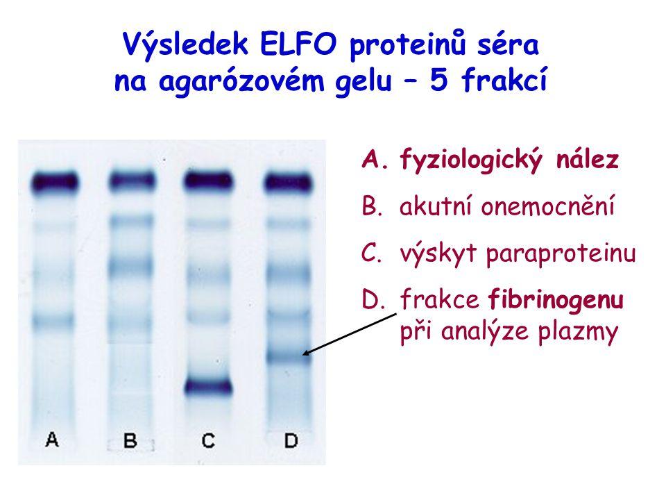 Výsledek ELFO proteinů séra na agarózovém gelu – 5 frakcí