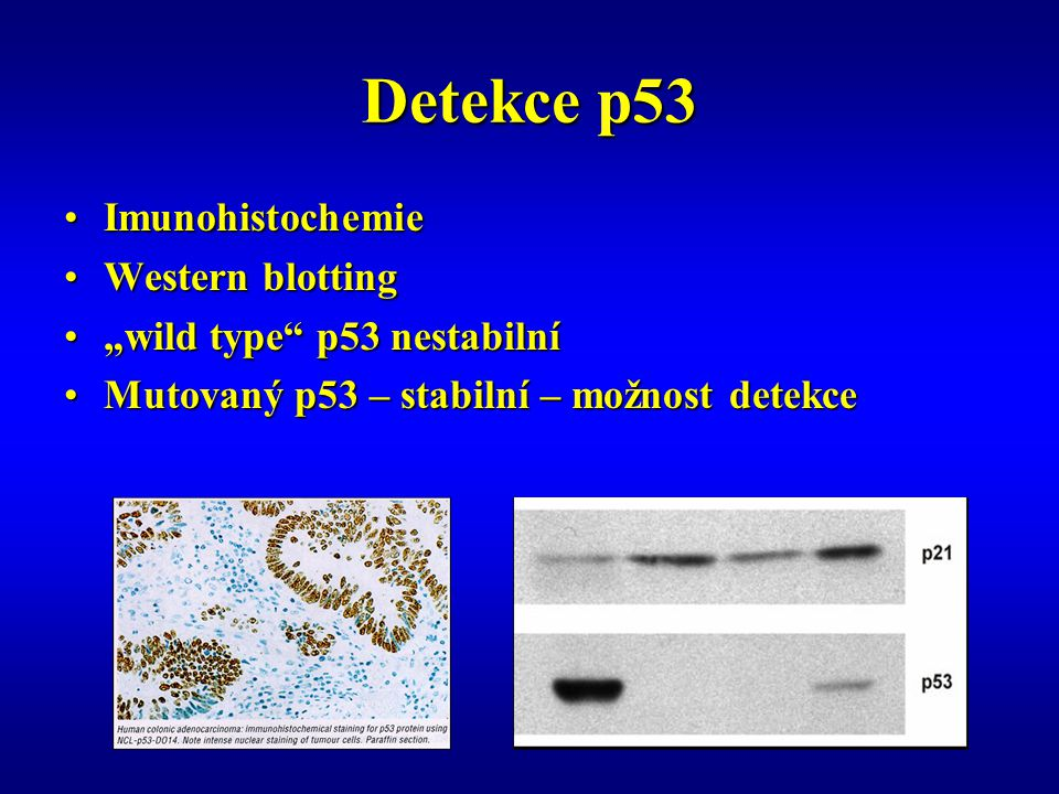 Detekce p53 Imunohistochemie Western blotting