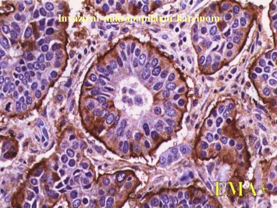 Invazivní mikropapilární karcinom