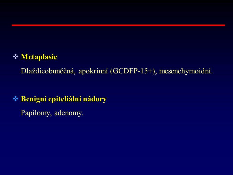 Metaplasie Dlaždicobuněčná, apokrinní (GCDFP-15+), mesenchymoidní.