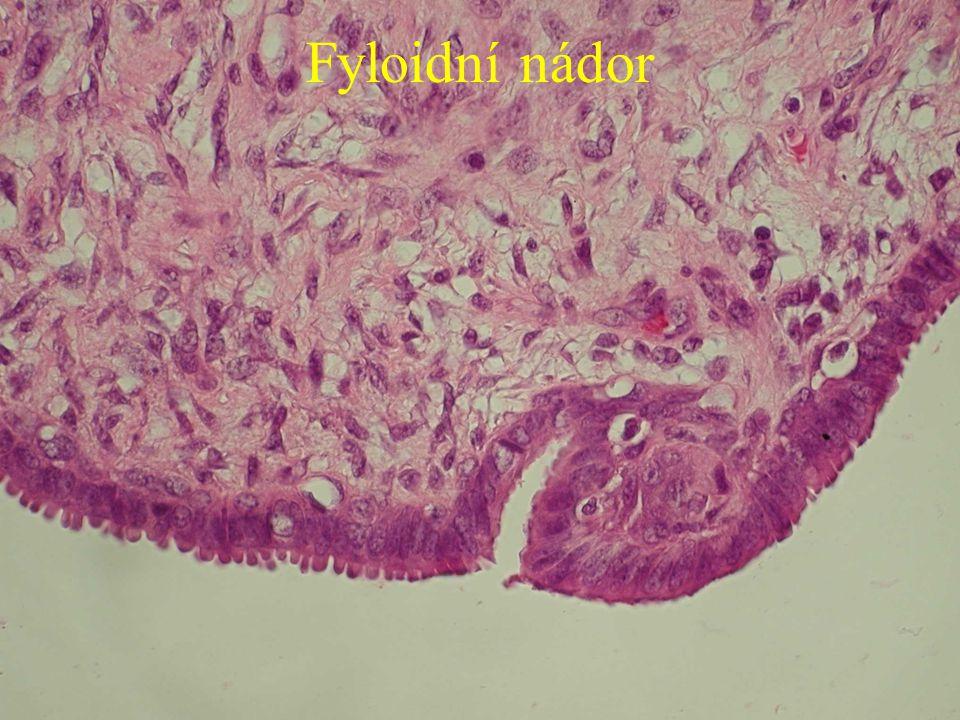 Fyloidní nádor
