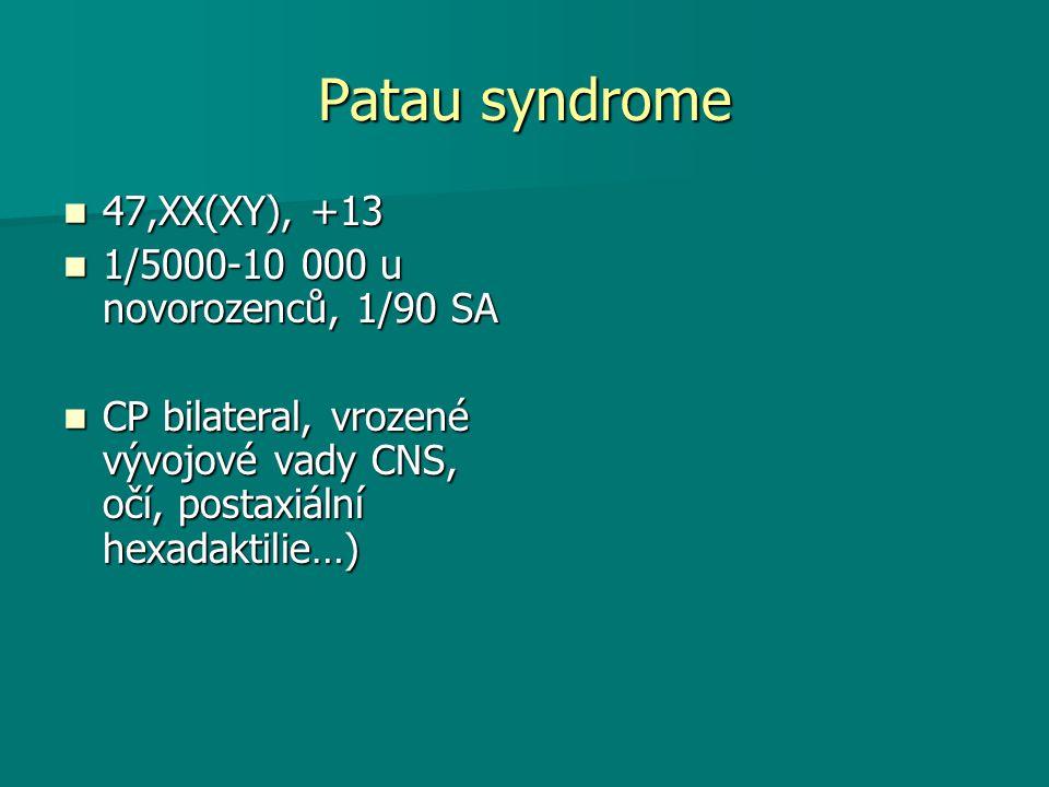 Patau syndrome 47,XX(XY), +13 1/5000-10 000 u novorozenců, 1/90 SA