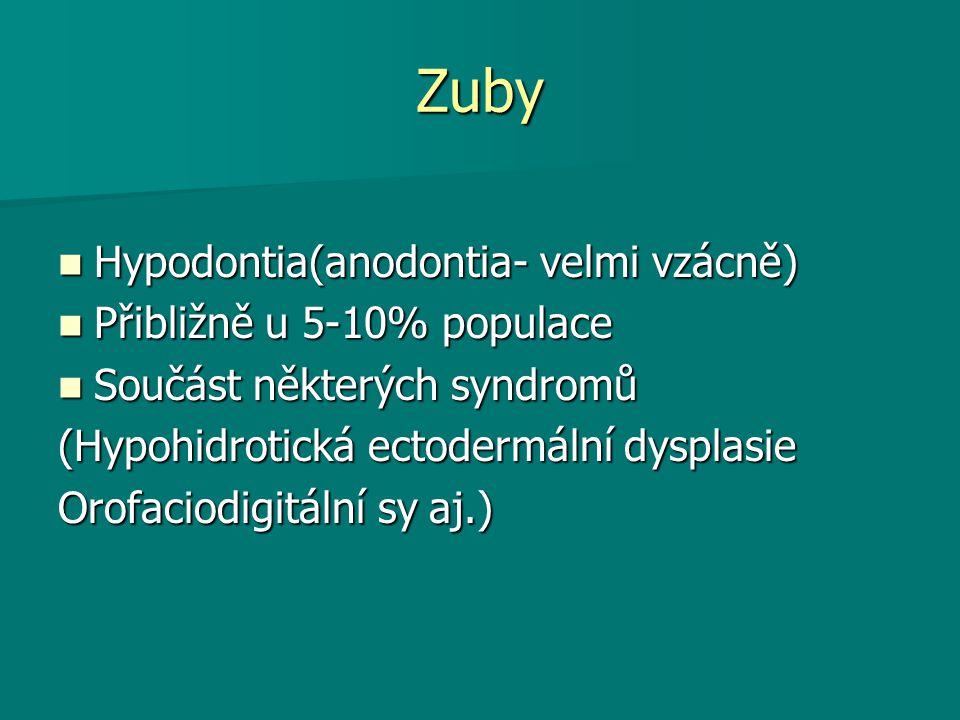 Zuby Hypodontia(anodontia- velmi vzácně) Přibližně u 5-10% populace