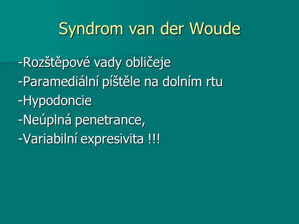 Syndrom van der Woude -Rozštěpové vady obličeje
