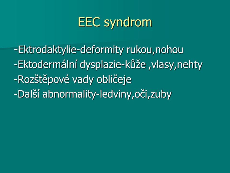 EEC syndrom -Ektrodaktylie-deformity rukou,nohou