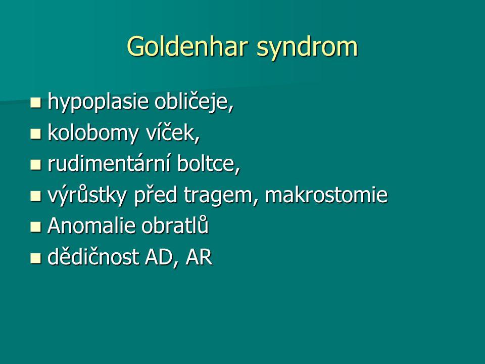 Goldenhar syndrom hypoplasie obličeje, kolobomy víček,