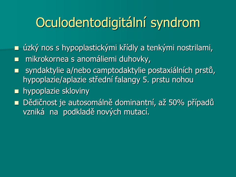 Oculodentodigitální syndrom