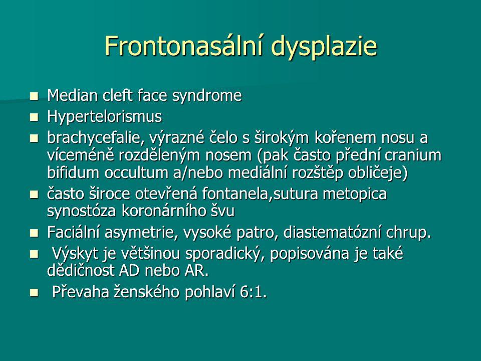 Frontonasální dysplazie