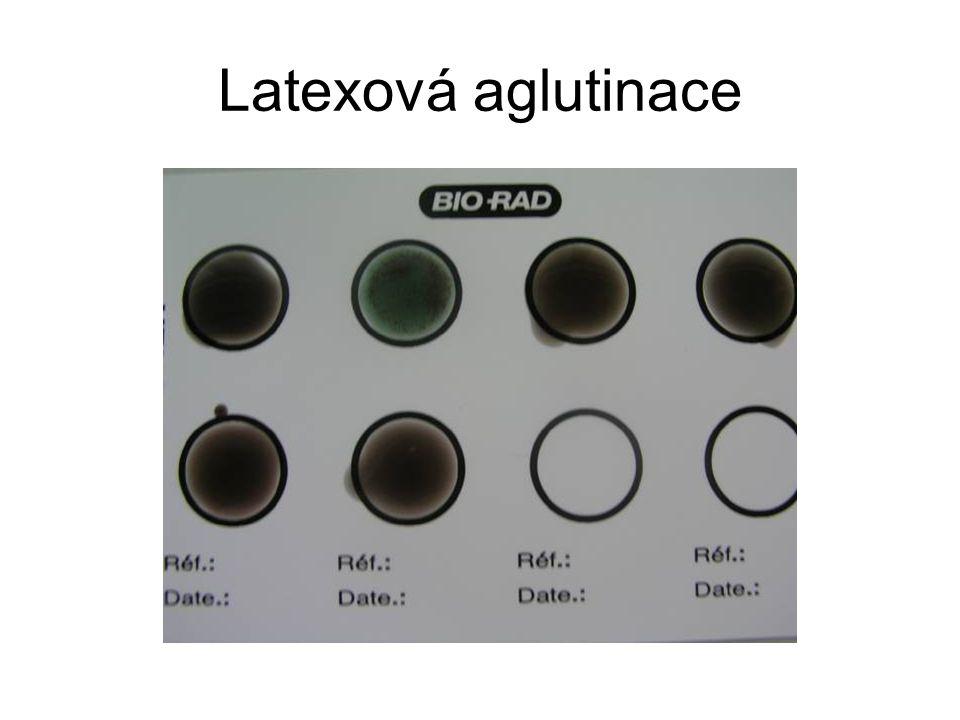 Latexová aglutinace