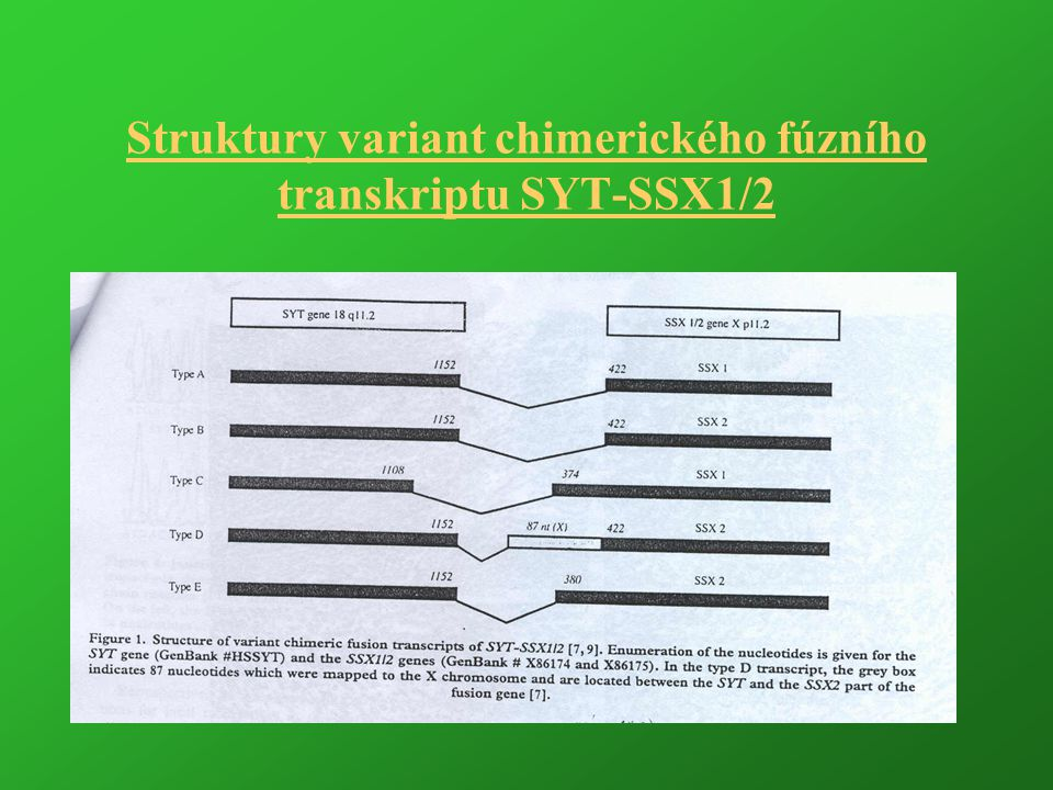 Struktury variant chimerického fúzního transkriptu SYT-SSX1/2