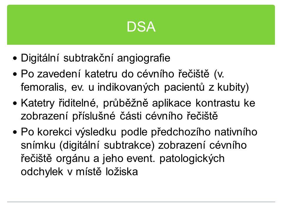 DSA Digitální subtrakční angiografie
