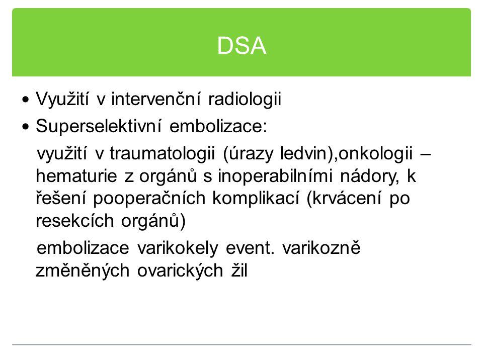 DSA Využití v intervenční radiologii Superselektivní embolizace: