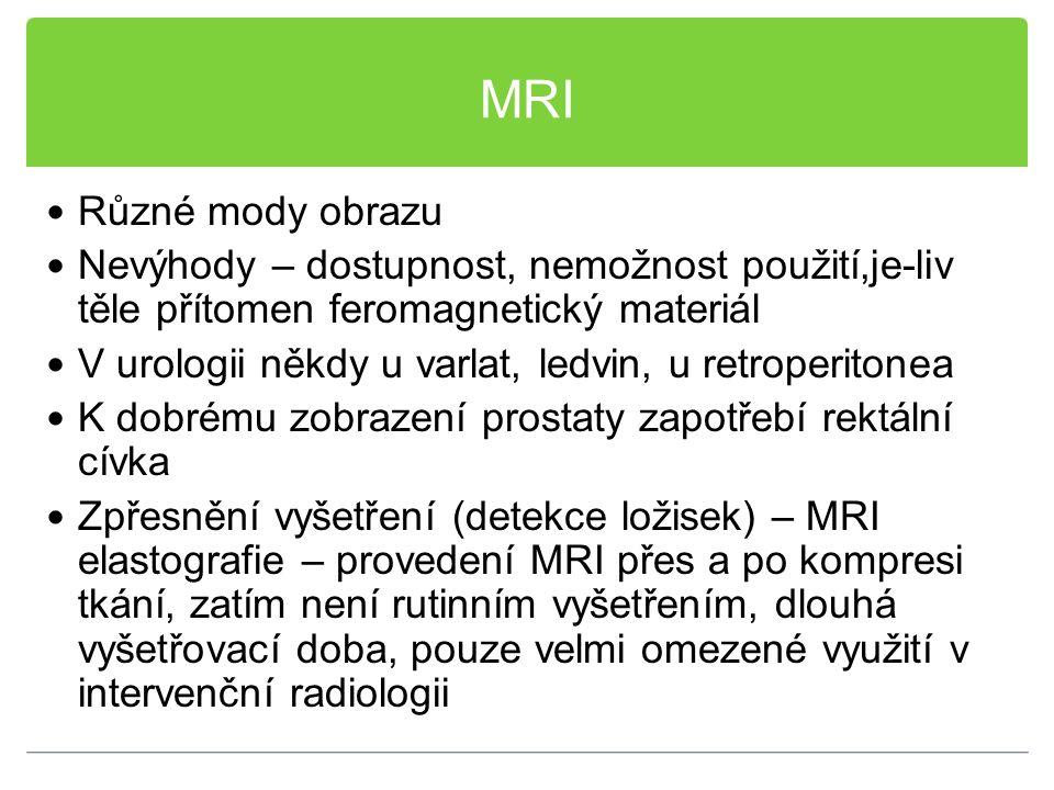 MRI Různé mody obrazu. Nevýhody – dostupnost, nemožnost použití,je-liv těle přítomen feromagnetický materiál.