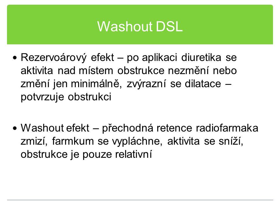 Washout DSL
