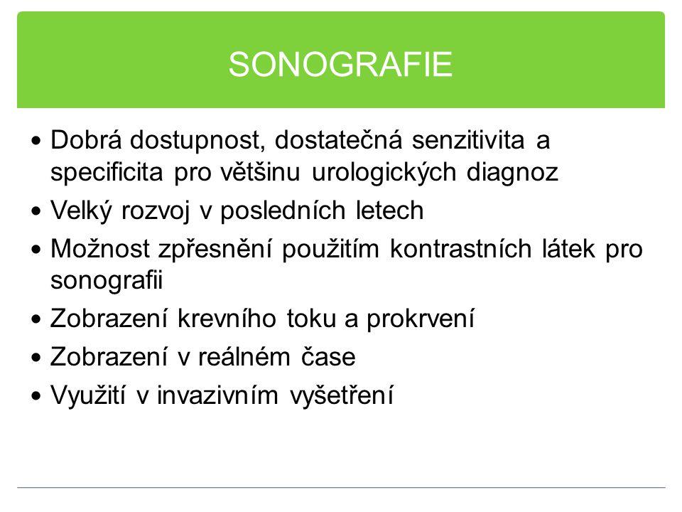 SONOGRAFIE Dobrá dostupnost, dostatečná senzitivita a specificita pro většinu urologických diagnoz.