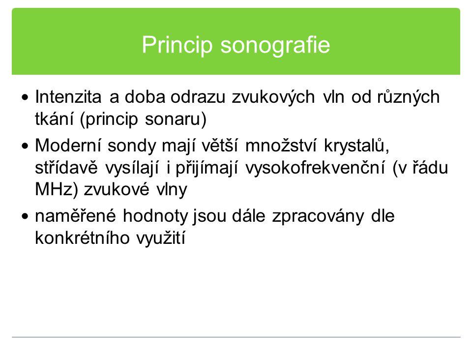 Princip sonografie Intenzita a doba odrazu zvukových vln od různých tkání (princip sonaru)