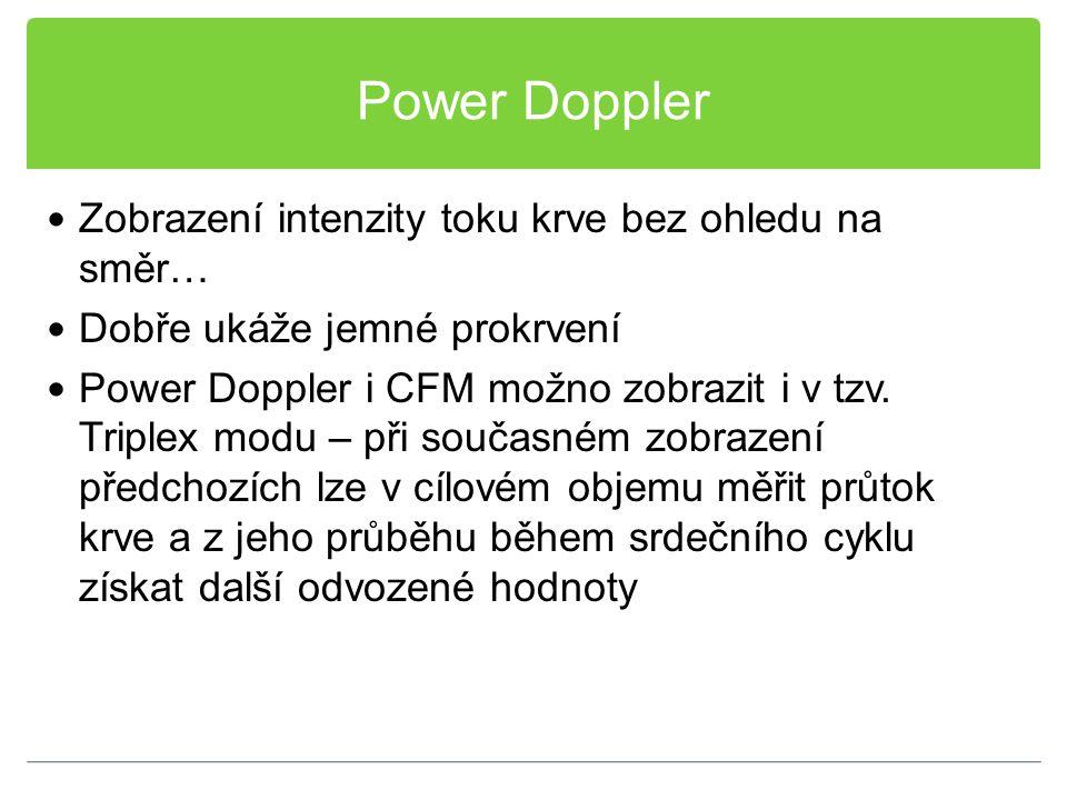 Power Doppler Zobrazení intenzity toku krve bez ohledu na směr…
