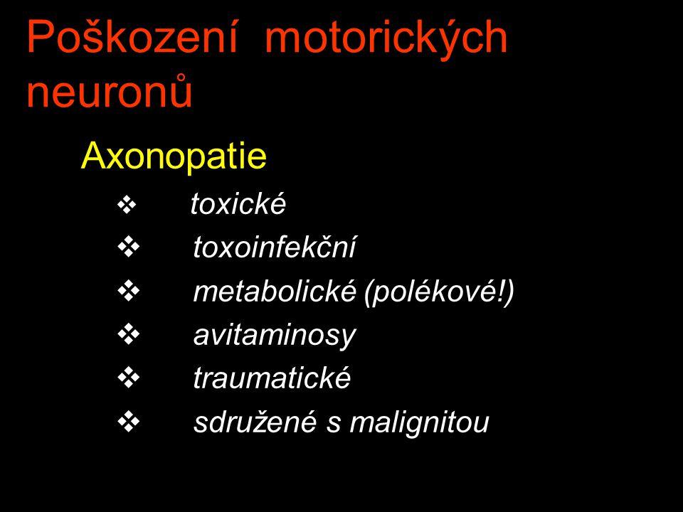 Poškození motorických neuronů