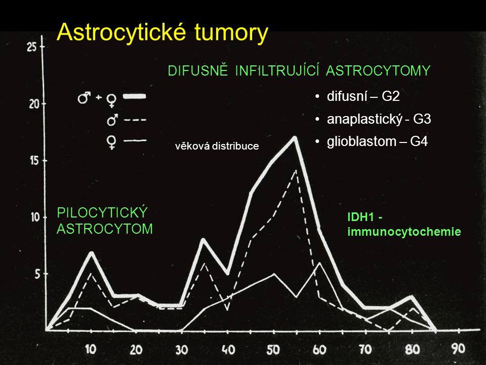 Astrocytické tumory DIFUSNĚ INFILTRUJÍCÍ ASTROCYTOMY difusní – G2