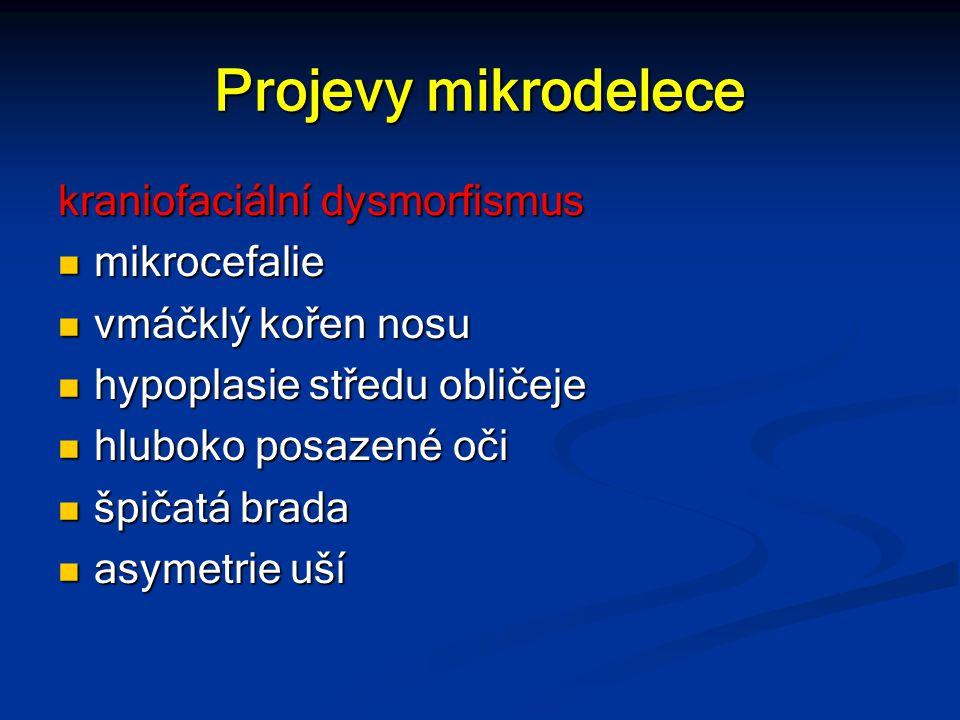 Projevy mikrodelece kraniofaciální dysmorfismus mikrocefalie