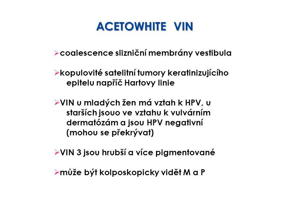 ACETOWHITE VIN kopulovité satelitní tumory keratinizujícího
