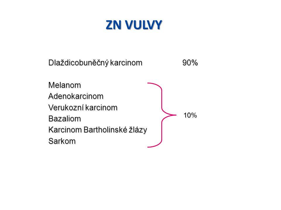 ZN VULVY Dlaždicobuněčný karcinom 90% Melanom Adenokarcinom