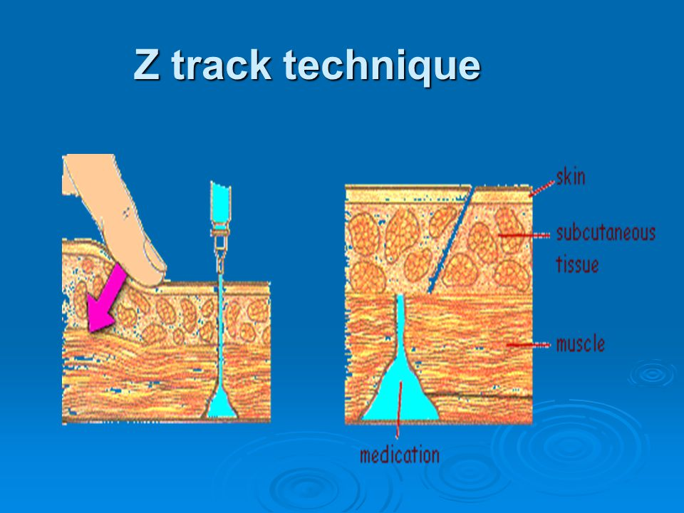 Z track technique