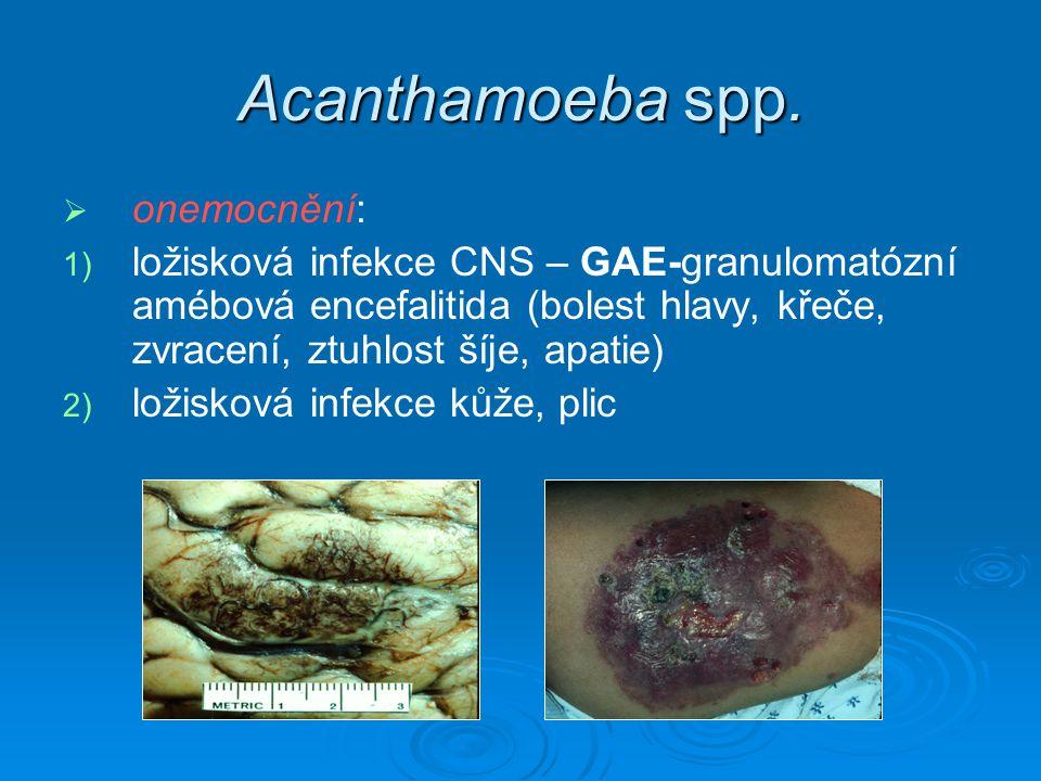 Acanthamoeba spp. onemocnění: