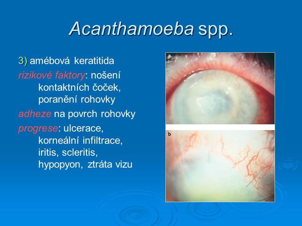 Acanthamoeba spp. 3) amébová keratitida