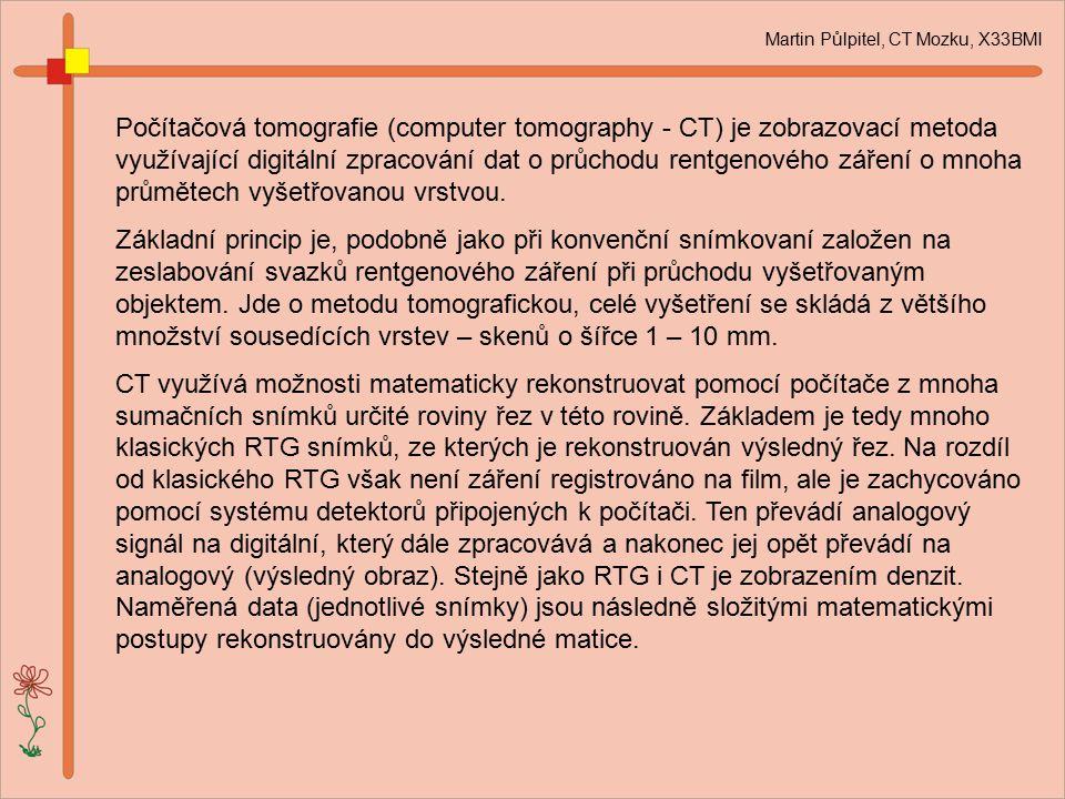 Martin Půlpitel, CT Mozku, X33BMI