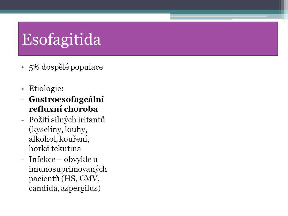 Esofagitida 5% dospělé populace Etiologie: