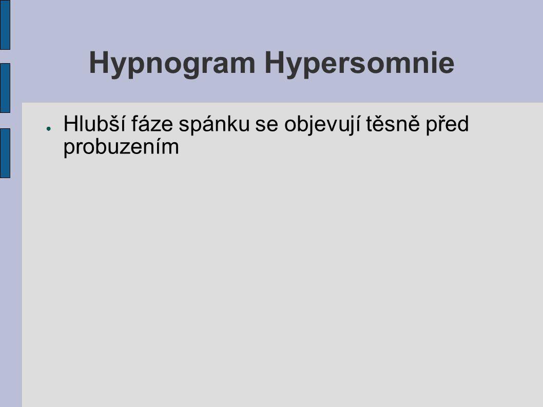 Hypnogram Hypersomnie