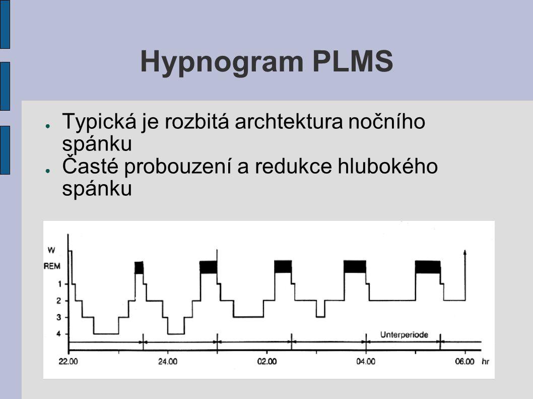 Hypnogram PLMS Typická je rozbitá archtektura nočního spánku