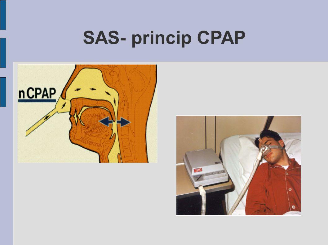 SAS- princip CPAP
