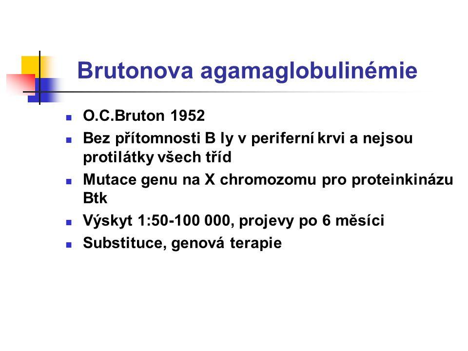 Brutonova agamaglobulinémie