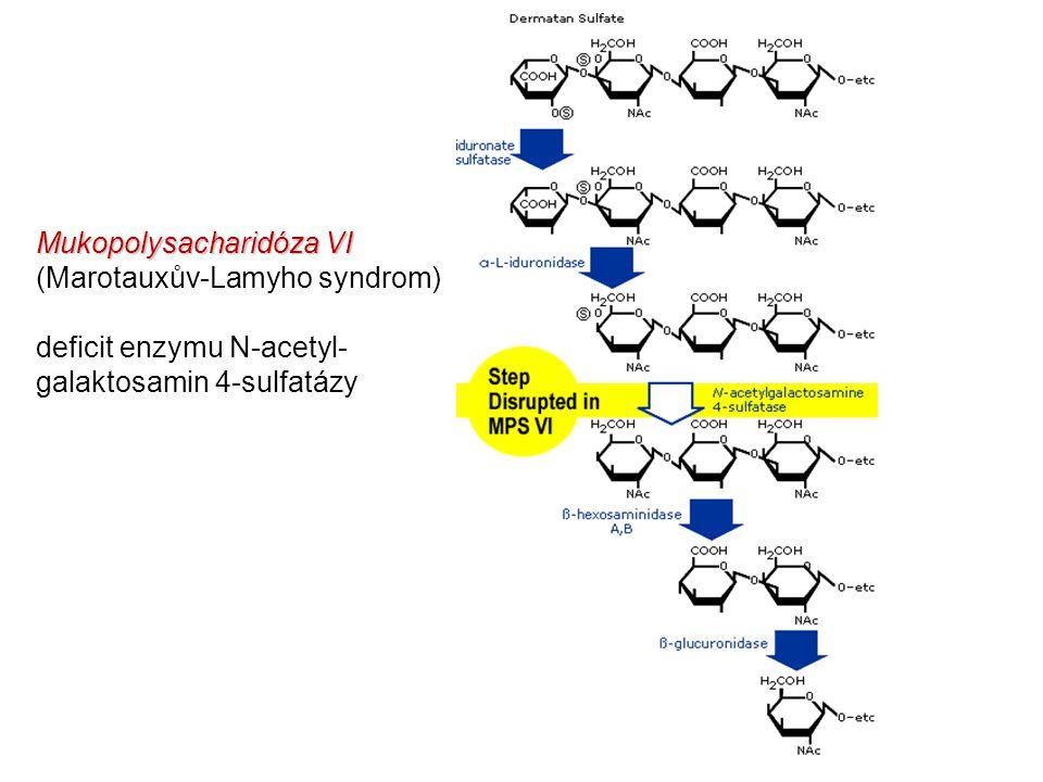 Mukopolysacharidóza VI (Marotauxův-Lamyho syndrom)