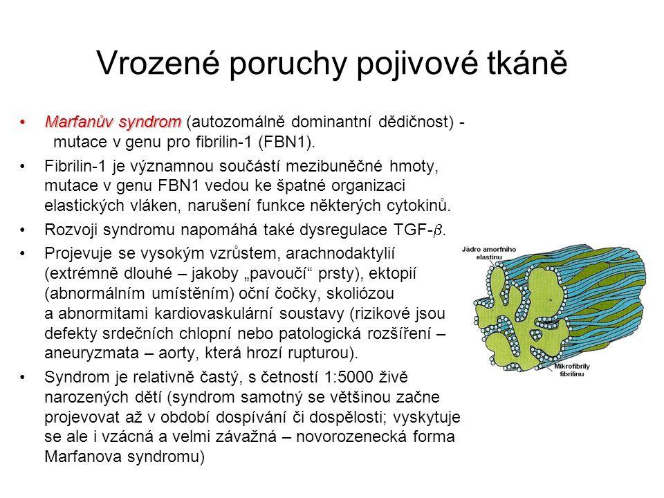 Vrozené poruchy pojivové tkáně